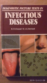 Diagnostic Picture Tests in Infectious Diseases